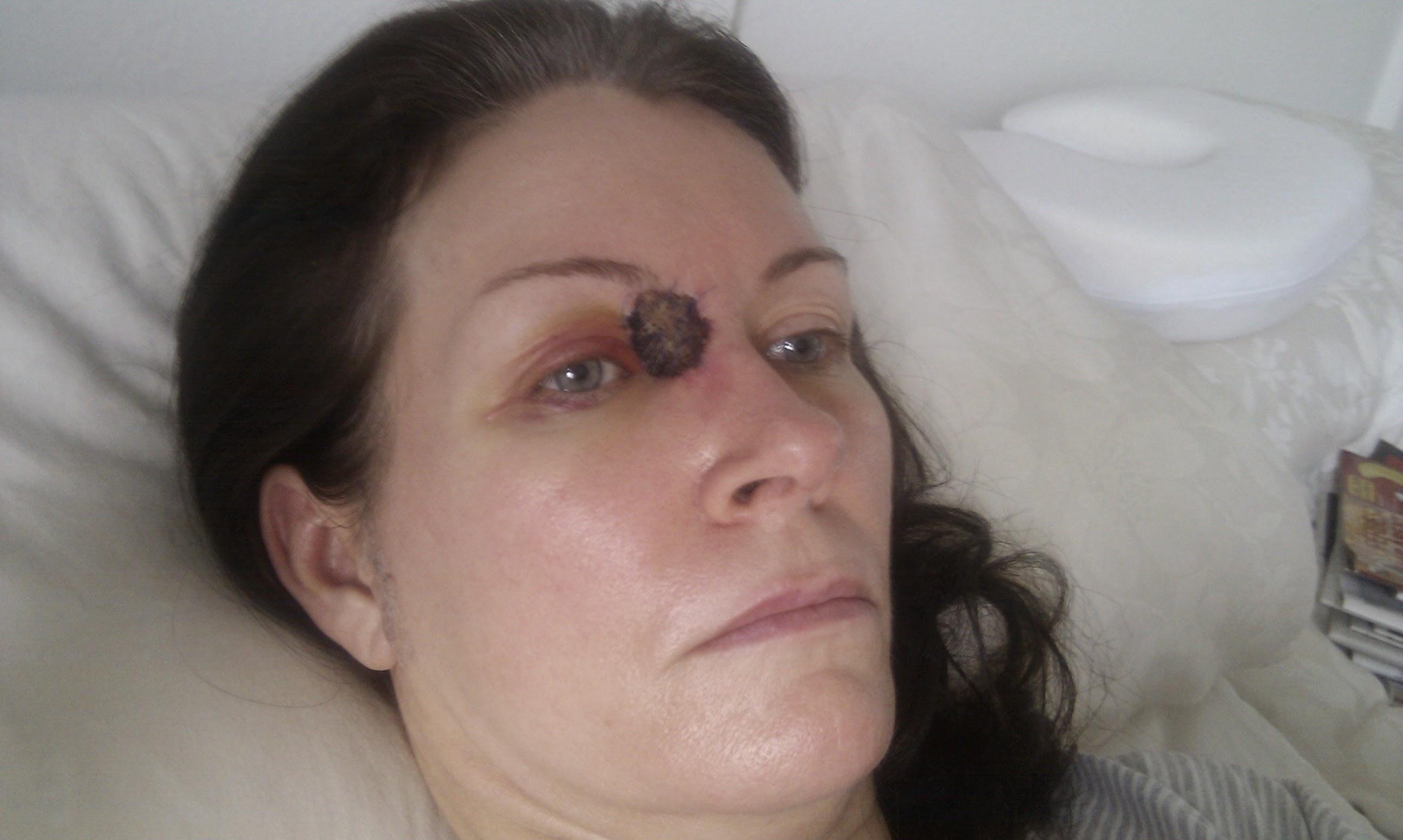 Efter cancer operationen